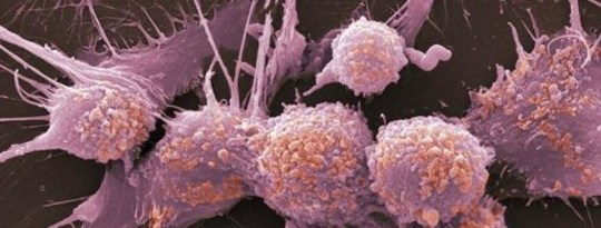 How Cancer Eats Itself To Survive Our Therapies
