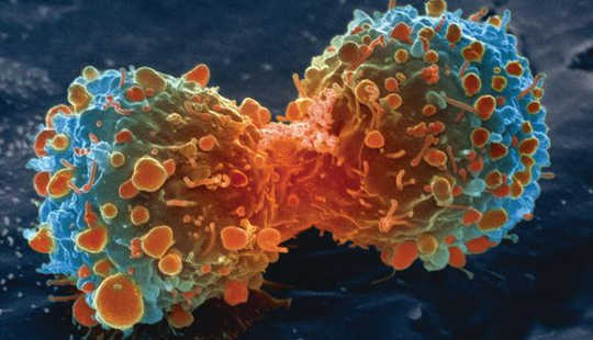 Cancer Cells Play It Dirty To Get What They Want