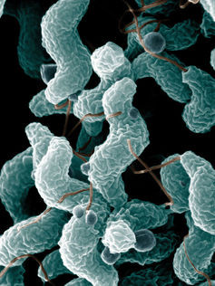 e coli-1-9