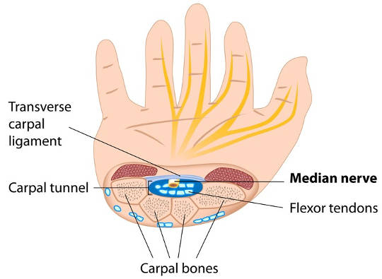 How to Treat Severe Hand Pain pictures