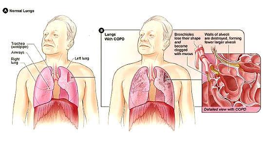 Terapi Oksigen Tidak Menguntungkan Setiap Orang Dengan COPD