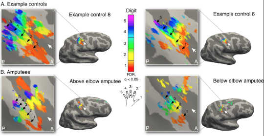 Brain imaging reveals detailed maps of the individual fingers of the hand in amputees (bottom) that are startling similar compared to the hand maps of the two-handed control participants (top). Author provided