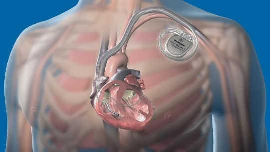 Ez az implantátum a szívelégtelenség megjóslását egy hónappal azelőtt, hogy bekövetkezne