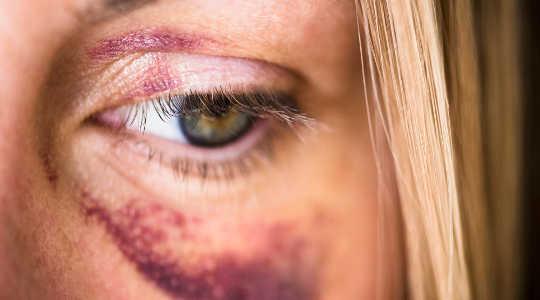 violencia doméstica 2 25