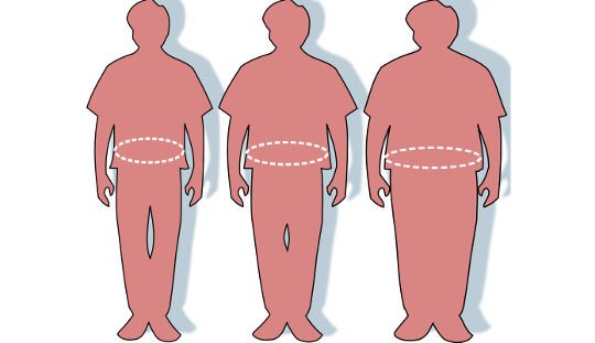 Obese Patients Frequently Aren't Getting An Obesity Diagnosis