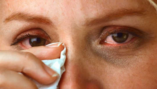 What Is Conjunctivitis And How Did I Get It?