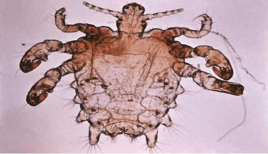 The pubic or crab louse has adapted to the humid environment of 'down there'. Centers for Disease Control and Prevention, CC BY