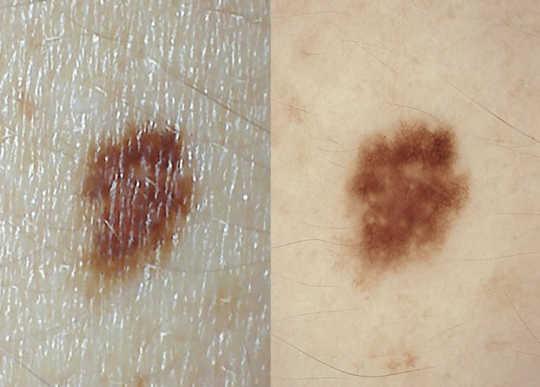一个皮肤镜可以帮助你的医生看看你的痣是否隐藏了黑色素瘤的迹象,或者如果没有什么可担心的。 UQ