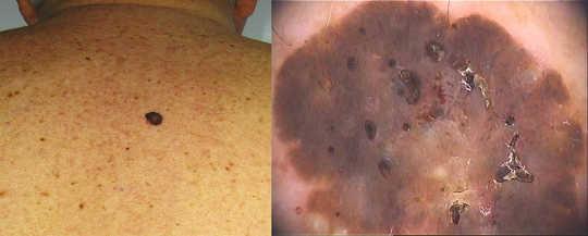 这种病变乍看起来令人担忧,但是在皮肤镜下,这种类似银屑病的外观显然是一种良性脂溢性角化病。 UQ