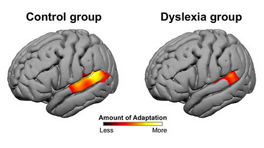 Brains Of People With Dyslexia Don't Adapt To New Stuff