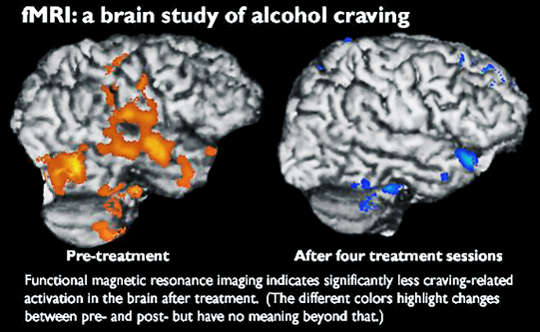 Brain Scans Suggest This Therapy Will Ease Alcohol Cravings