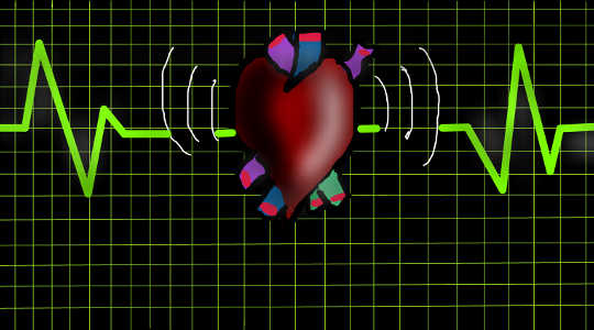 Why Heart Failure Is Not As Common A Death As Reports Imply