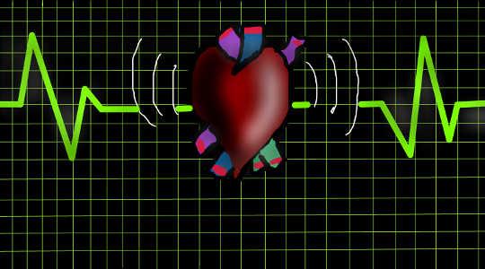 Mengapa Gagal Jantung Bukan Sebagai Kematian Umum Sebagai Laporan yang Berimplikasi