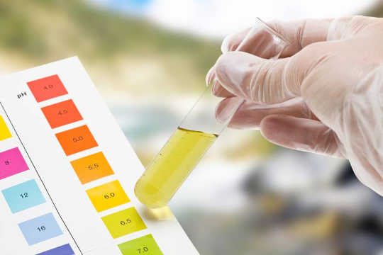 What Can Your Doctor Tell From Your Urine?