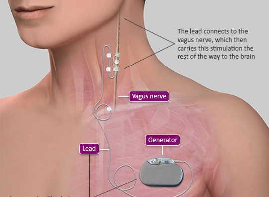 Cet implant zappe le nerf vague juste pour traiter l'inflammation