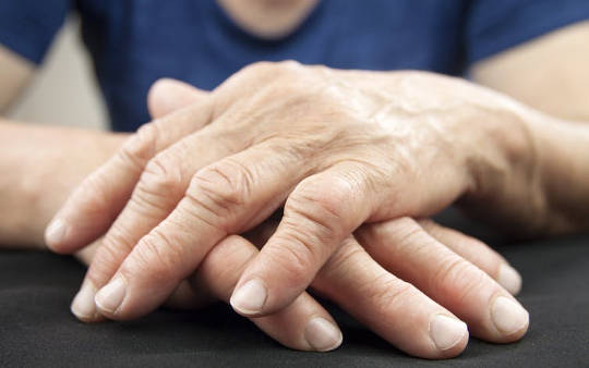 Psoriasis And Arthritis Can Increase Heart Attack and Stroke Risk