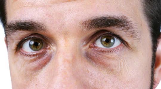 Miksi saamme tummat ympyrät silmiemme alle?