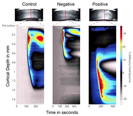 the optical images shows the wave of spreading depolarization in the brain
