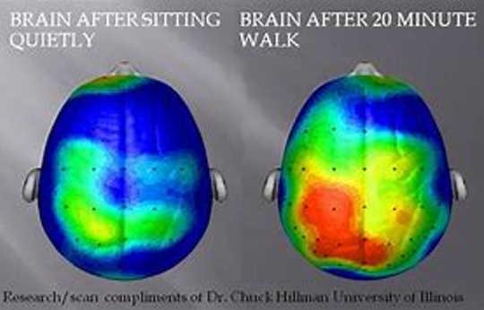 Pemindaian otak anak sebelum (kiri) dan setelah (kanan) berjalan di atas treadmill selama 20 menit.