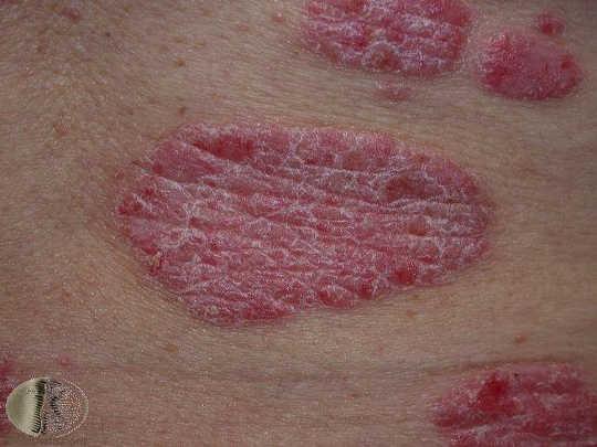 乾癬の病変は、赤く上げられ、しばしば白い鱗がある。