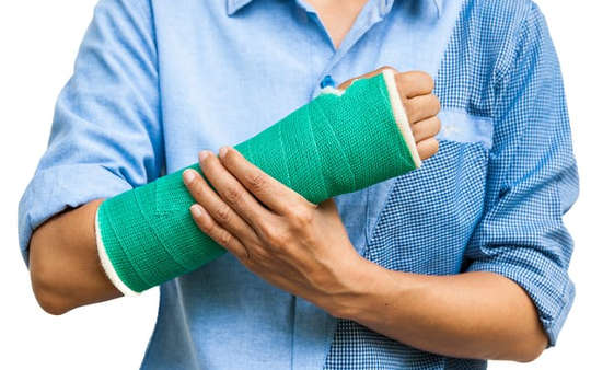 Broke Your Arm? Exercise The Other Arm To Strengthen The Broken One