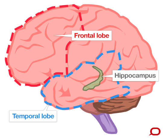 Why people with dementia do not all behave the same: The frontal lobe, temporal lobe and hippocampus can all be affected by different types of dementia.