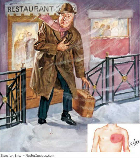 Heart attacks are more frequent in colder weather: Frank Netter's famous painting