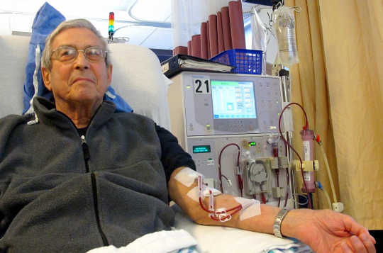 Why Older Adults On Dialysis Face Higher Risk For Dementia
