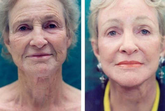 These Exercises Took 3 Years Off Of Aging Faces