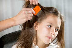 How To Get Rid Of Head Lice Without Spending Loads Of Money