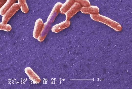Hoe Gut Microbes is klein sensors van jou algemene gesondheid