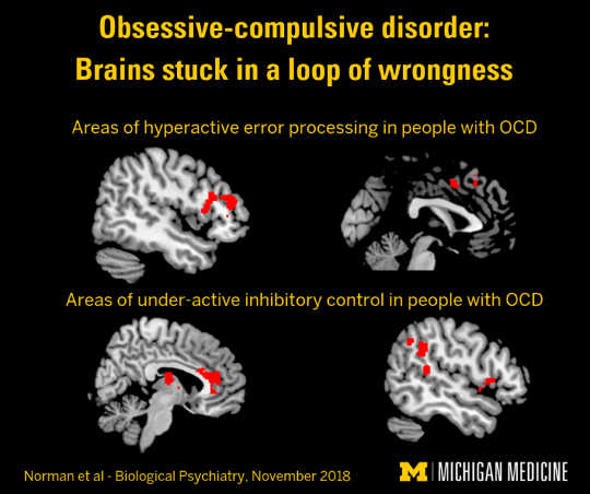 How People With OCD Get Stuck In A Loop Of Wrongness
