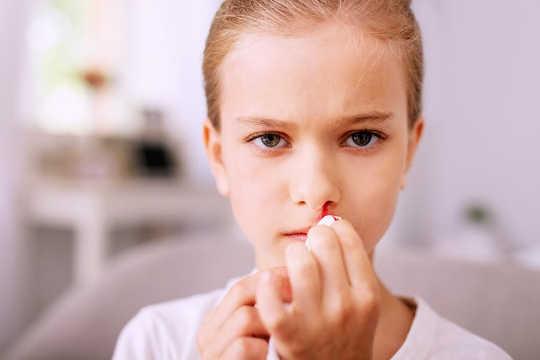 हम नाक ब्लीड्स क्यों प्राप्त करते हैं?