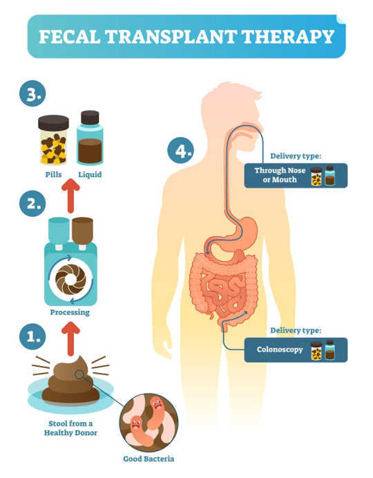 Fecal Microbiome Transplantation Shows Promise In Treating Colitis