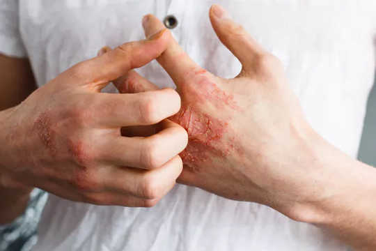 Skin conditions like eczema that break the surface of the skin are often associated with food allergies. (food allergies what you need to know about the role your skin plays)