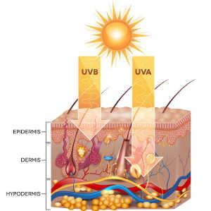 あなたが日焼けしたときあなたの肌に何が起こりますか?
