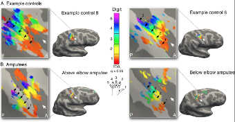 Bagaimana Otak Mengingat Tungkai Amputasi Dan Terus Mengontrol Mereka