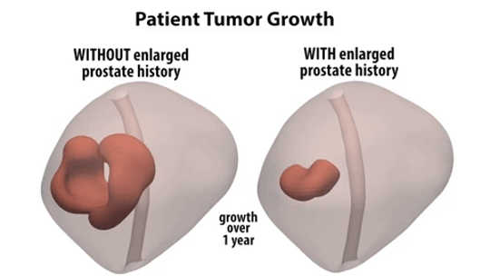 Do Enlarged Prostates Actually Protect Against Tumors?