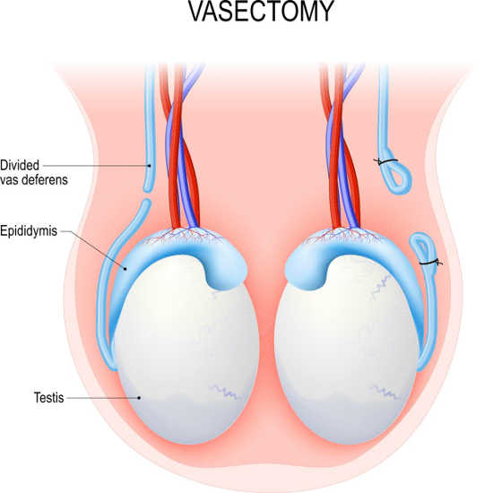 is Vasectomy reversible2 2 22