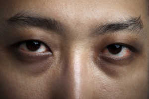 Why Dry Eye Disease Is A Concern For Diabetes Sufferers