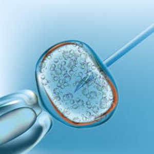 Considering Using IVF To Have A Baby? Here's What You Need To Know