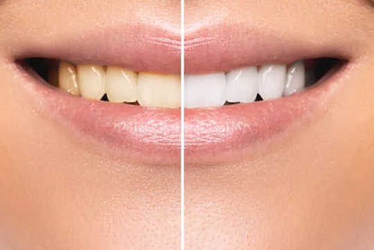 Tooth Whitening – Don't Gamble With Your Teeth