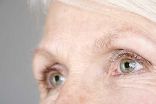 Thoái hóa điểm vàng liên quan đến tuổi