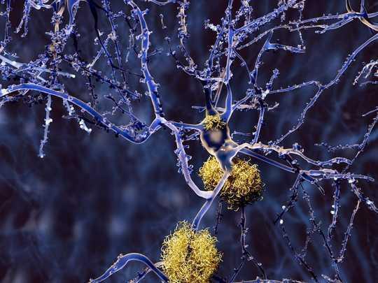 Memikirkan semula Pendekatan Untuk Memerangi Penyakit Alzheimer
