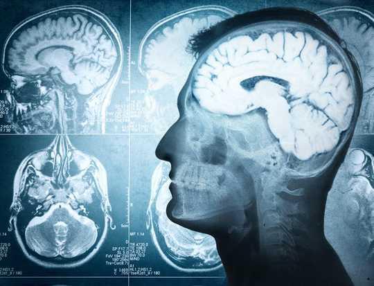 जब हम असहमत होते हैं तो दिमाग में क्या होता है