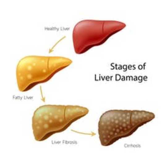 I microbi intestinali possono farti ubriacare e danneggiare il fegato