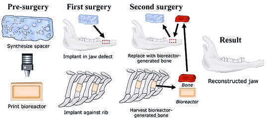 Bagaimana Cara ini Meningkatkan Jawbone Baru Dari A Ribut
