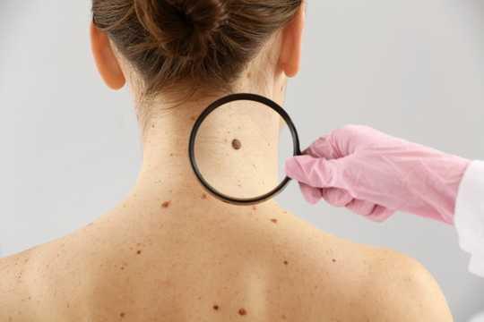 Nốt ruồi trên cơ thể được xác định chủ yếu bởi di truyền