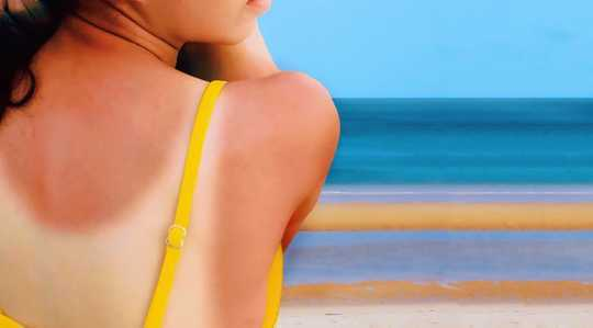 4½ Những lầm tưởng về kem chống nắng và tại sao họ lại sai
