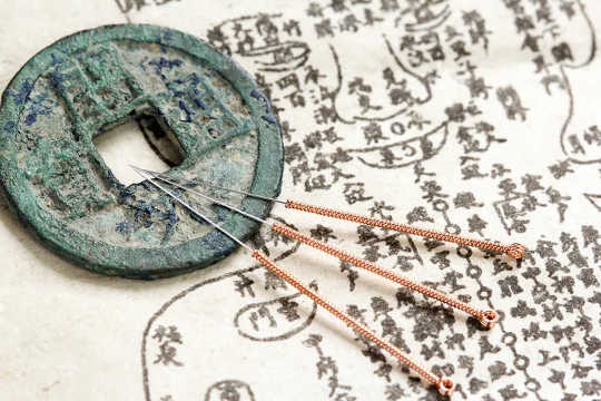 This Ancient Chinese Anatomical Atlas Changes What We Know About Acupuncture And Medical History